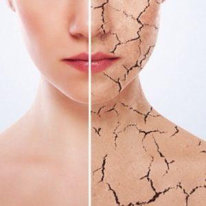 Патологии кожных покровов