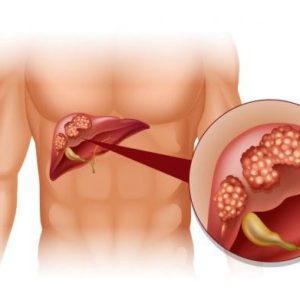 Хронический гепатит, цирроз печени