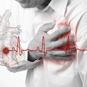Ишемическая болезнь сердца, реабилитация после инфаркта и инсульта