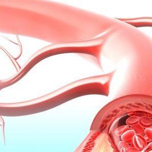 Атеросклероз, артериальная гипертензия, нейроциркуляторная дистония